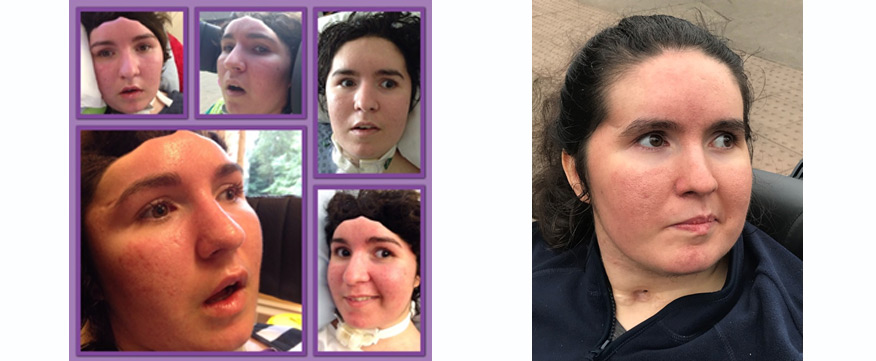 Helen suffered a traumatic brain injury as a result of a car accident. These are pictures of Helen.