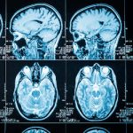 Brain injury scans providing a fresh look at frontal lobe injuries