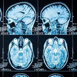 Brain injury scans providing a fresh look at frontal lobe injuries
