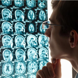 A Consultant studies brain imaging which showcases our Frontal Lobe Paradox webinar